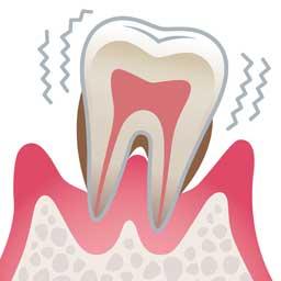 歯周病の進行と治療の流れ しのぶ歯科